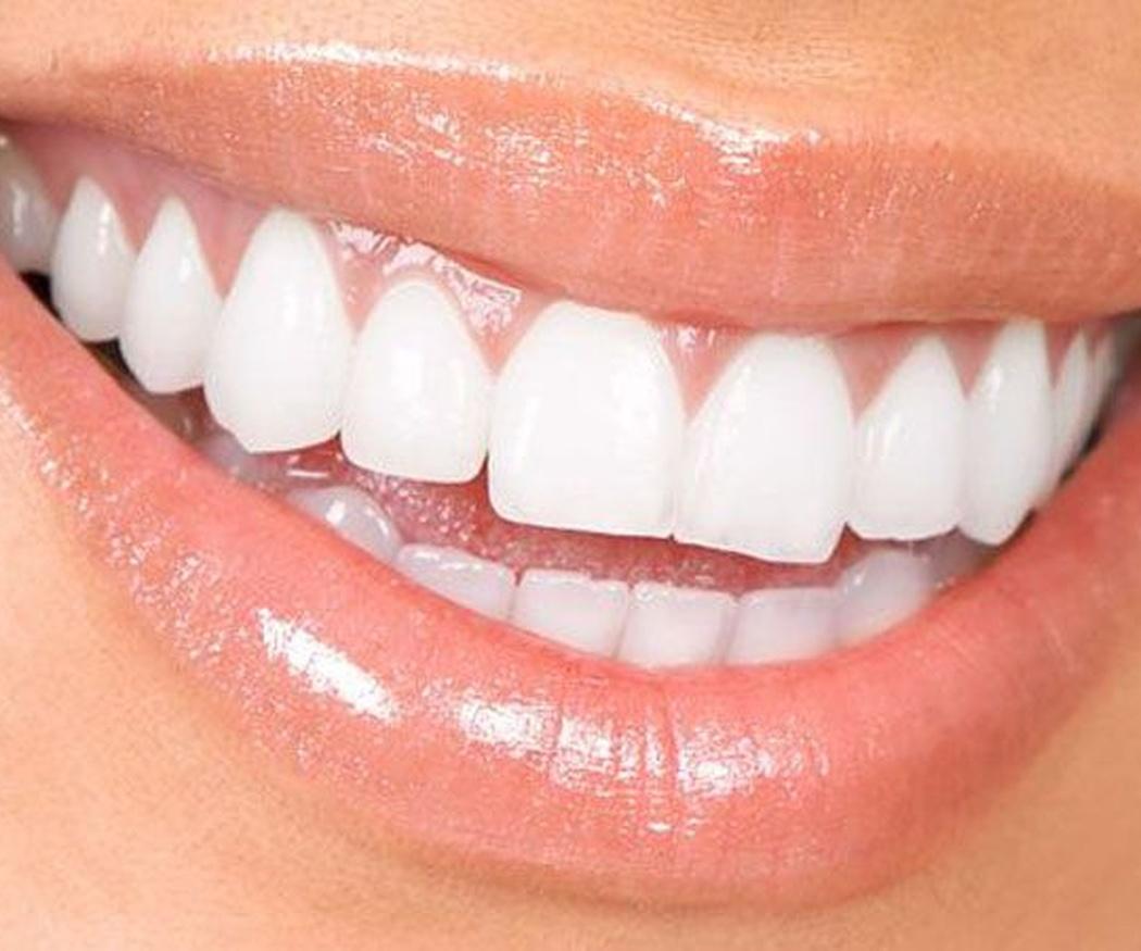 Técnicas de blanqueamiento dental