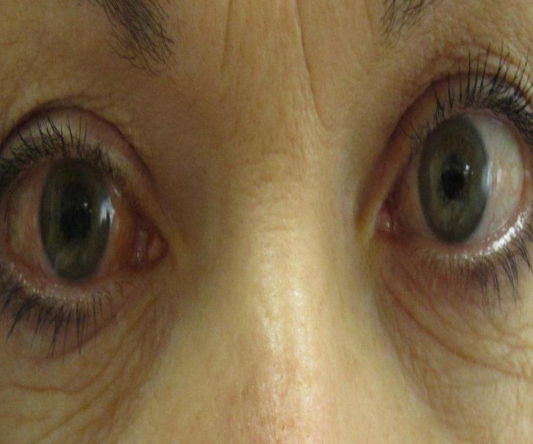 El tratamiento del glaucoma