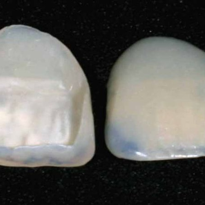 Ventajas de las fundas de porcelana
