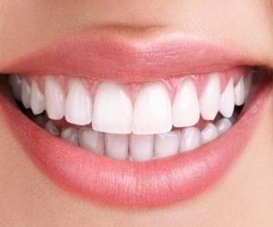Estética dental en Valenca