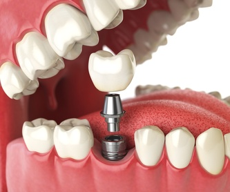Implantología: Tratamientos y Servicios de Clínica Dental Censadent