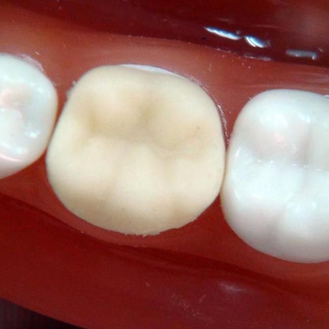 ¿Cómo cuidar tu prótesis dental?