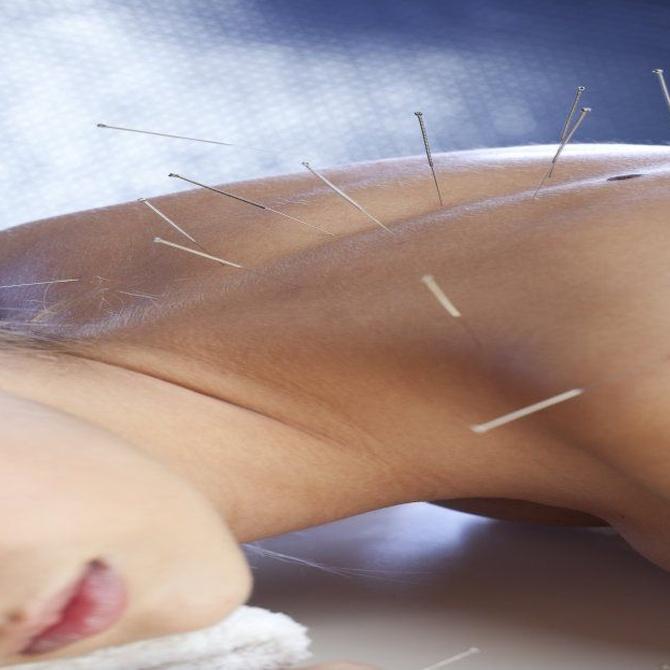 La acupuntura para adelgazar (I)