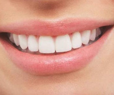 La obsesión por lucir una sonrisa 10