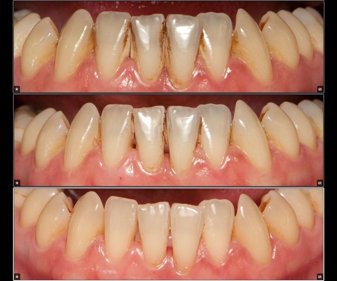 Limpieza dental : Servicios de Clínica Dental Dra. Belkys Hernández Cabrera