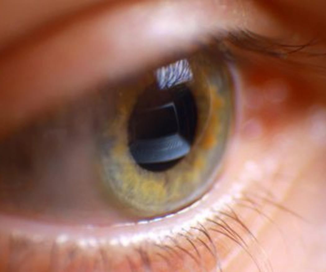 ¿Por qué tantas personas sufren fatiga visual?