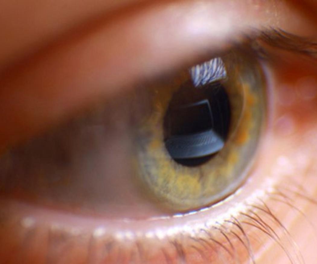 La cirugía ocular con láser
