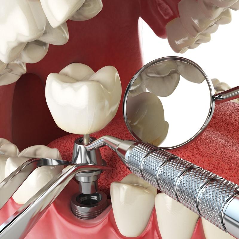 IMPLANTES: Tratamientos de Clínica Dental Santa Eulàlia