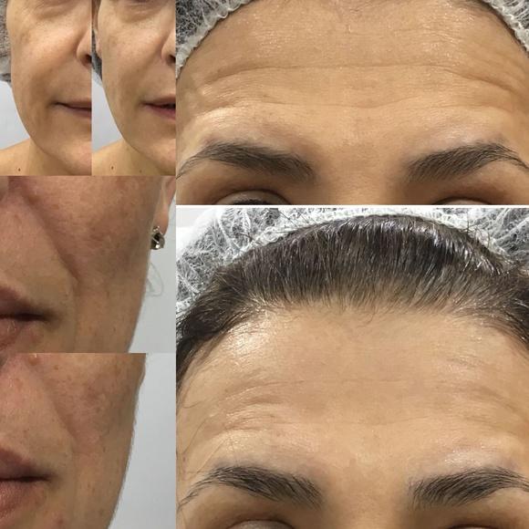 Antes y después de una sesión de tratamiento HIFU