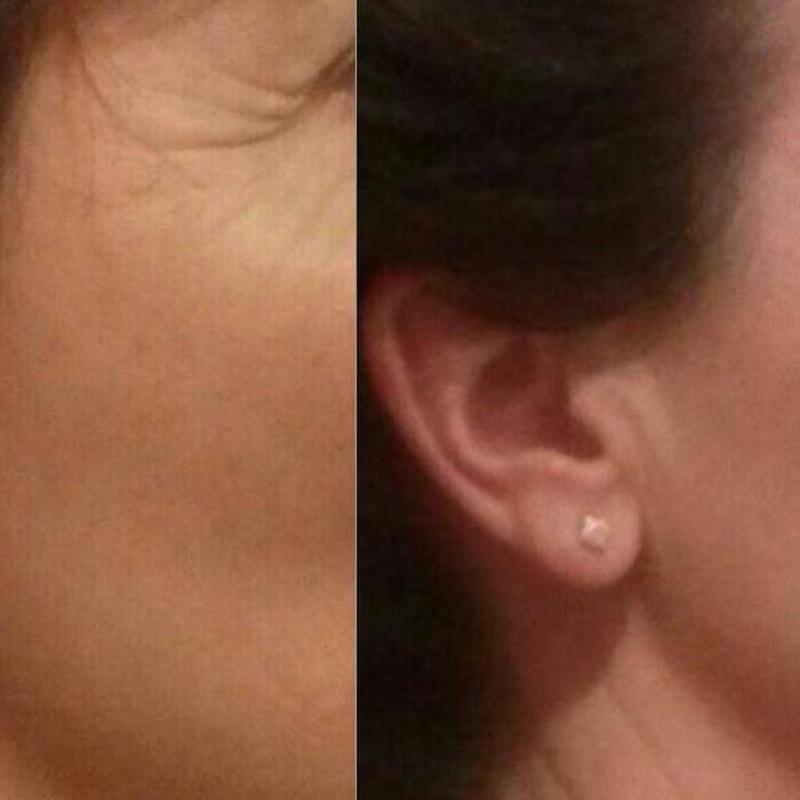 tratamientos con lipoled: Tratamientos de La Pell de L'ànima
