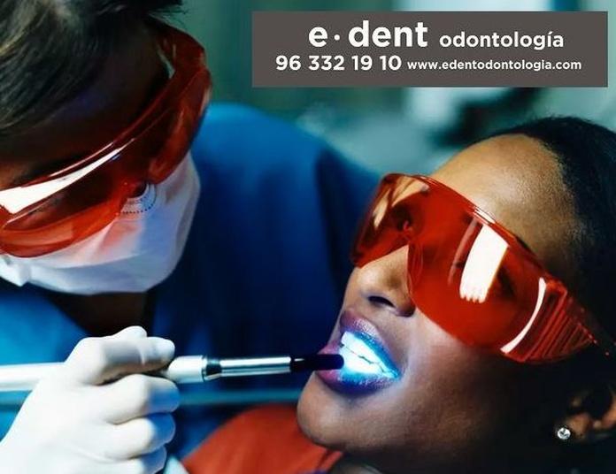 Blanqueamiento dental en Valencia