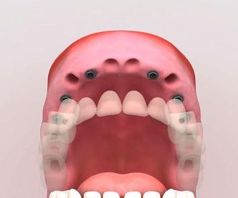Prótesis dental removible: Servicios de Centro Dental Integral Mª Azucena Plata Vega