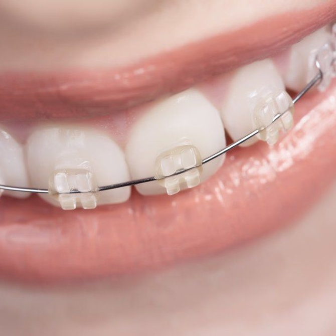 La fase de retención de la ortodoncia