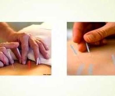 Tratamiento del dolor con acupuntura