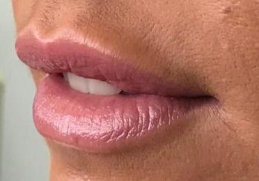 Tratamientos de Labios