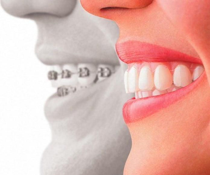 Ortodoncia (Invisalign): Servicios de Romo de Clínica Dental Romo