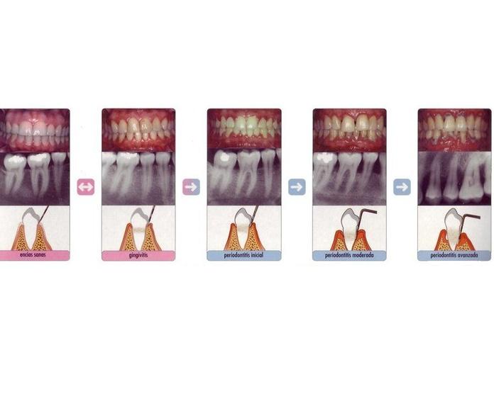 Piorrea  : Servicios   de Clínica Dental Dr. Javier Pérez Martínez