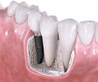 PORCELANA: ESPECIALIDADES de Clínica Dental Morey
