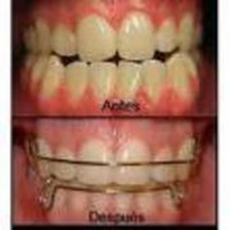 Ortodoncia infantil: Tratamientos de M. José Cadiñanos Díaz Tejeiro, Dra.