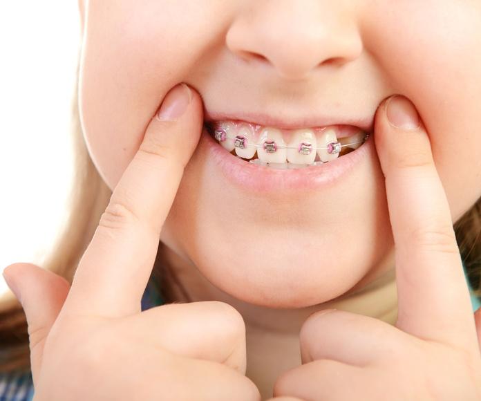 Odontopediatría: Tratamientos de Clínica Dental Dra. Andrés