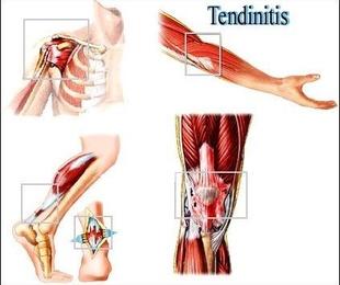 Tratamiento Tendinitis