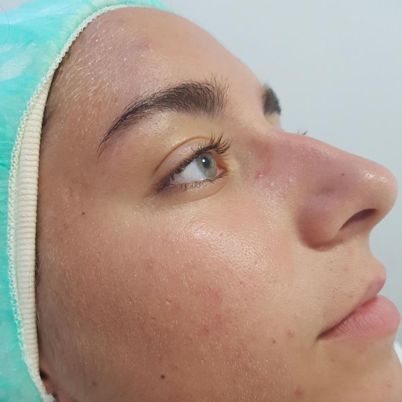 Después del tratamiento del acné.