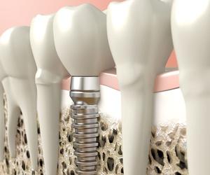 Implantes dentales Getxo