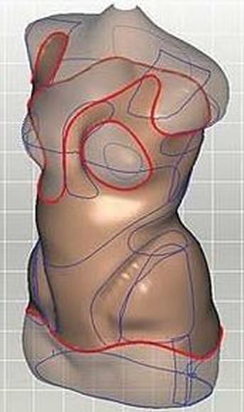 Tecnología 3D en ortopedia