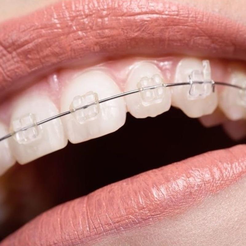 Ortodoncia invisible: Tratamientos  de Cruz Dental