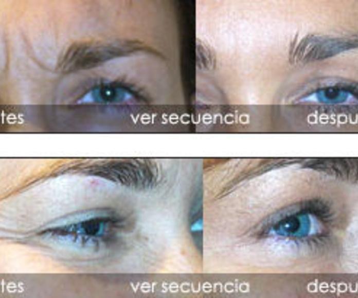 Tratamiento de arrugas con toxina botulínica : Servicios de Clínica Dr. Javier Cerqueiro Cirugía Plástica