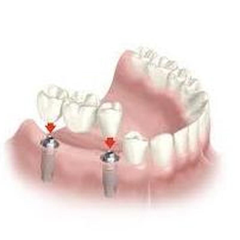 Implantes: Servicios de Clínica Dental Dra. Charo Díez