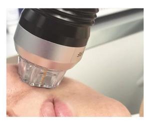 Prolex,Tratamiento antiedad reafirmante