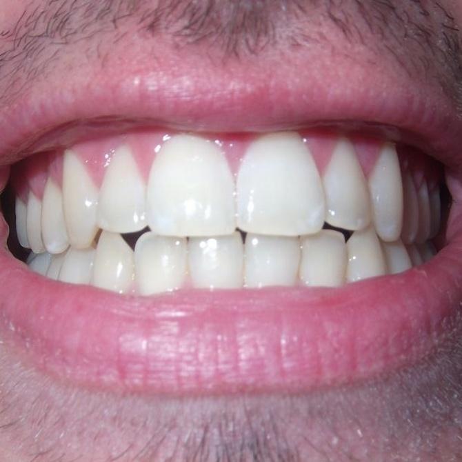 ¿Qué hacer con las manchas blancas en los dientes?