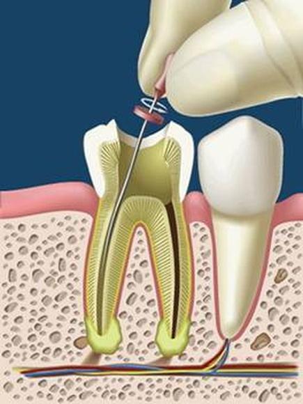 ENDODONCIA: SERVICIOS de Clínica Dental Basauri