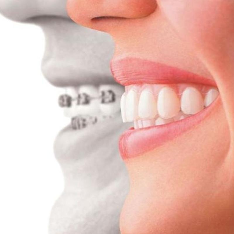 Ortodoncia para adultos: Catálogo de Edent Clínica Dental - Dra. Celia Caba