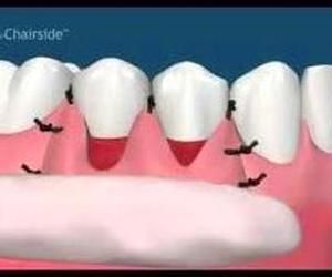 Cirugía periodontal a colgajo