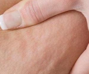 Celulitis/Estrías