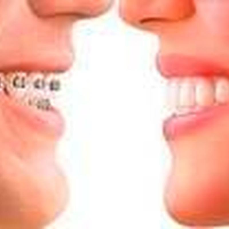 ORTODONCIA: Tratamientos de Clínica Dental Ángel Artiz