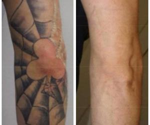 Eliminación de tatuajes en Madrid