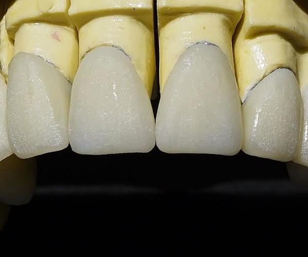 Protésicos dentales en Segovia | Calidad Tecnident 98, S.L.