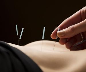 Tratamientos con acupuntura