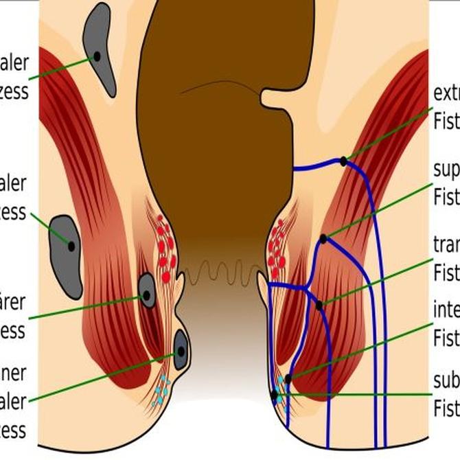 Diferencias entre fístula y fisura