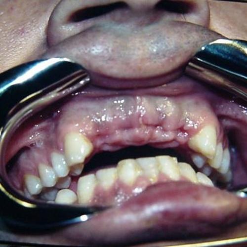 Implantes caso 1 pre