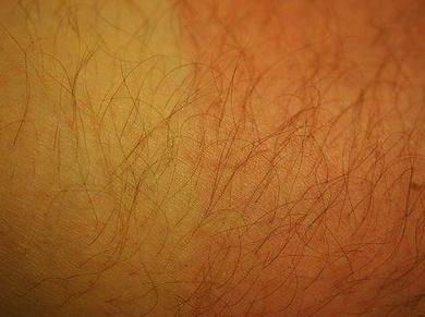 El 15% de la población española sufre Dermatitis Atópica