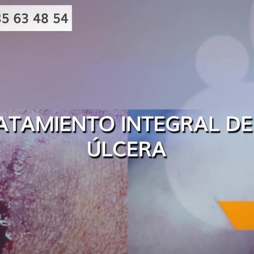 Tratamiento de úlceras varicosas en Lugo | Dr. Antonio Barreiro Mouro