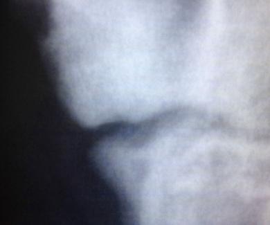 Osteocondritis del codo. (O.C.D)