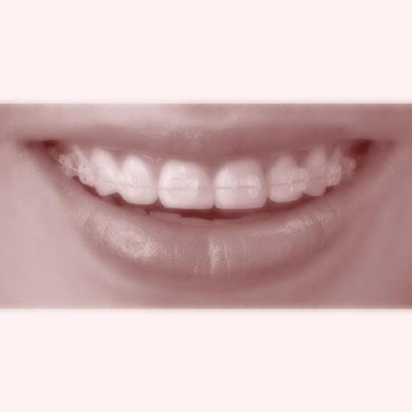 Ortodoncia: Tratamientos de Cliesdent Clínica de Especialistas Dentales - Nueva Dirección!