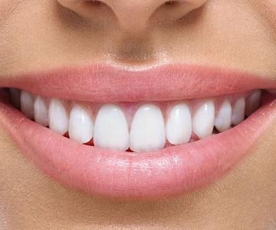 Mejora tu sonrisa