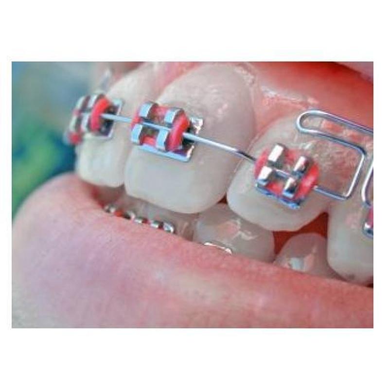 Prótesis: Tratamientos de Clínica Dental Espartales - José Antonio Narváez