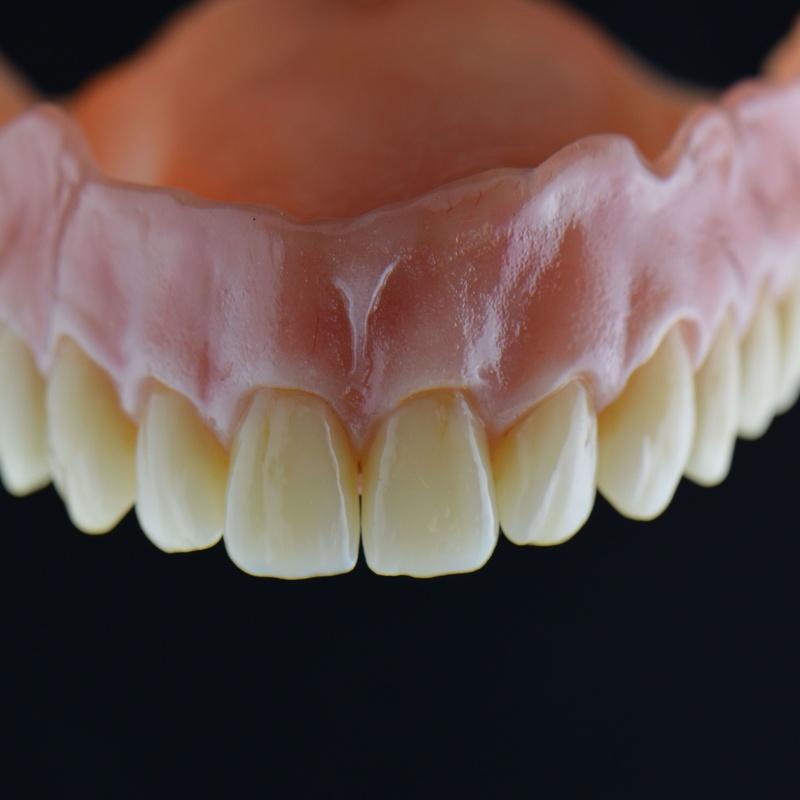 Prótesis removible: Productos y servicios de Tecnolab Dental Galicia